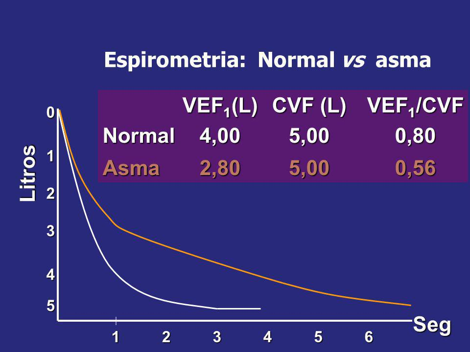 Espirometria: Normal vs asma