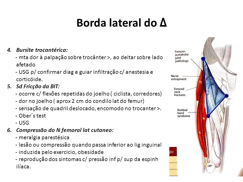 Borda lateral do Δ Bursite trocantérica: