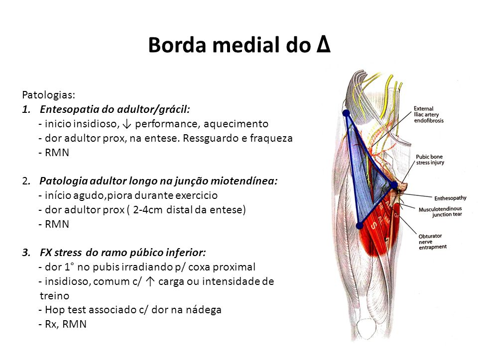 Borda medial do Δ Patologias: Entesopatia do adultor/grácil: