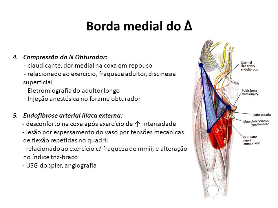 Borda medial do Δ Compressão do N Obturador: