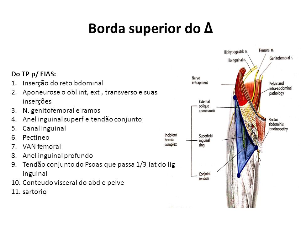 Borda superior do Δ Do TP p/ EIAS: Inserção do reto bdominal