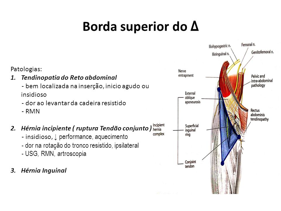 Borda superior do Δ Patologias: Tendinopatia do Reto abdominal