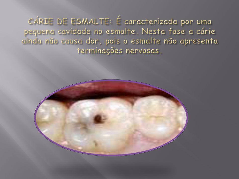 CÁRIE DE ESMALTE: É caracterizada por uma pequena cavidade no esmalte