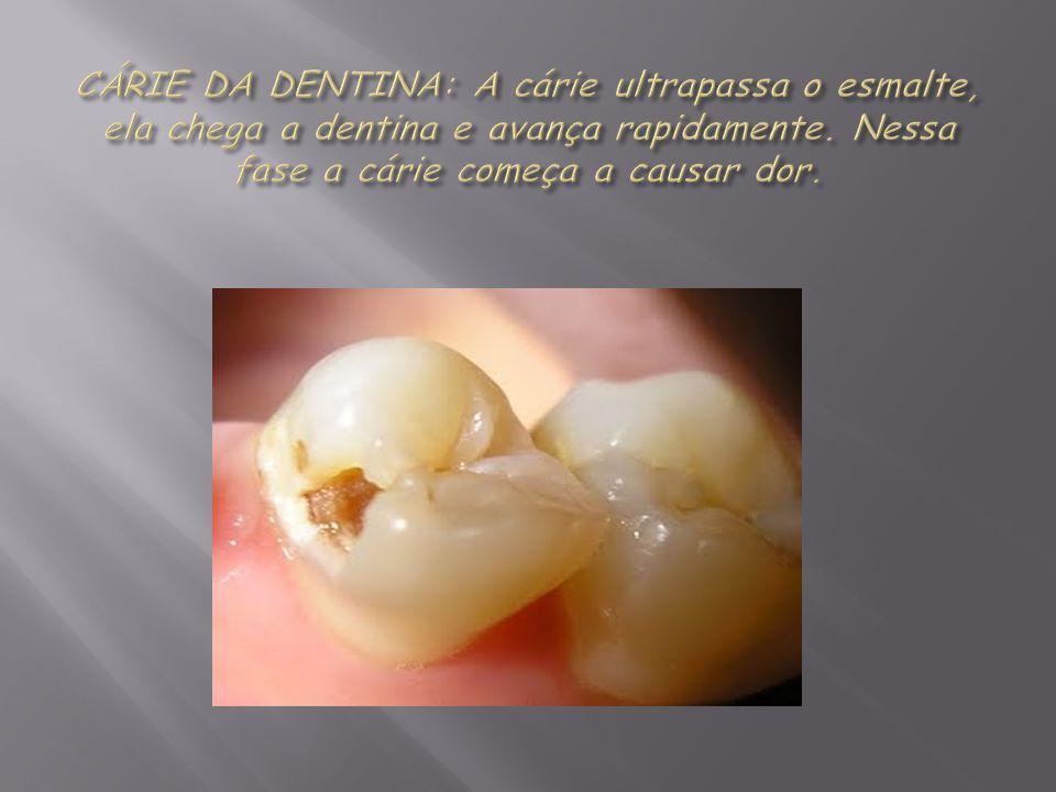 CÁRIE DA DENTINA: A cárie ultrapassa o esmalte, ela chega a dentina e avança rapidamente.