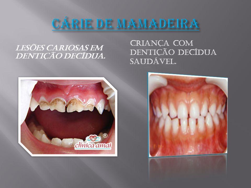 CÁRIE DE MAMADEIRA Criança com dentição decídua saudável.