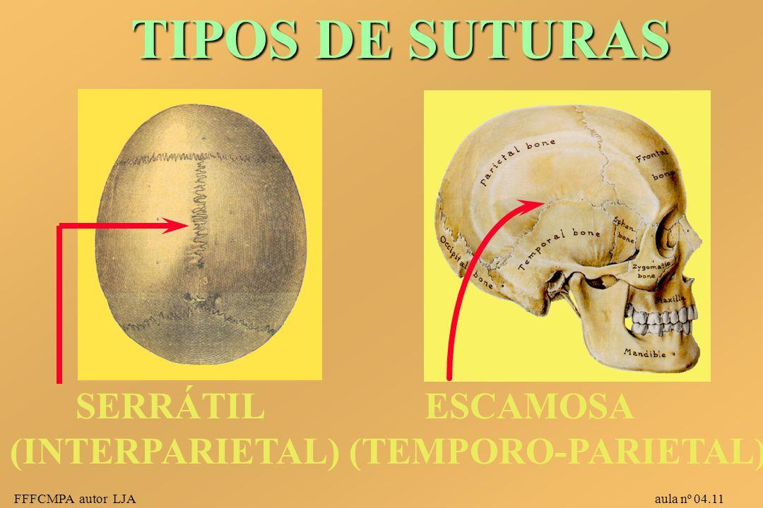 TIPOS DE SUTURAS SERRÁTIL (INTERPARIETAL) ESCAMOSA (TEMPORO-PARIETAL)