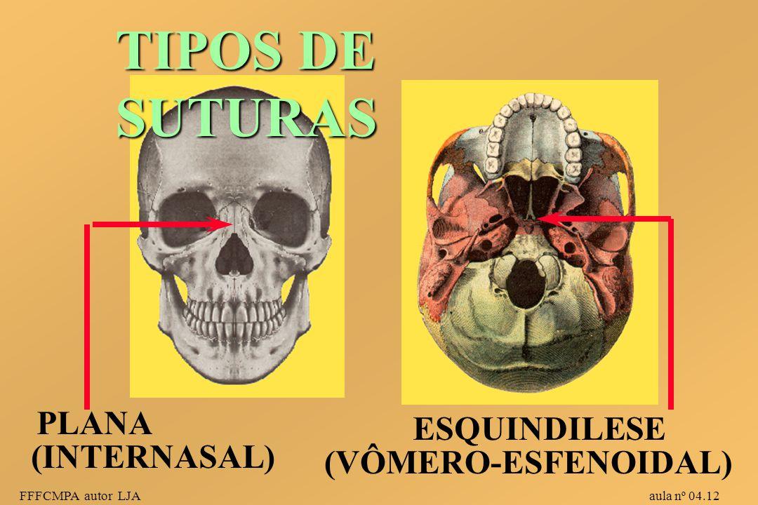 TIPOS DE SUTURAS PLANA ESQUINDILESE (INTERNASAL) (VÔMERO-ESFENOIDAL)