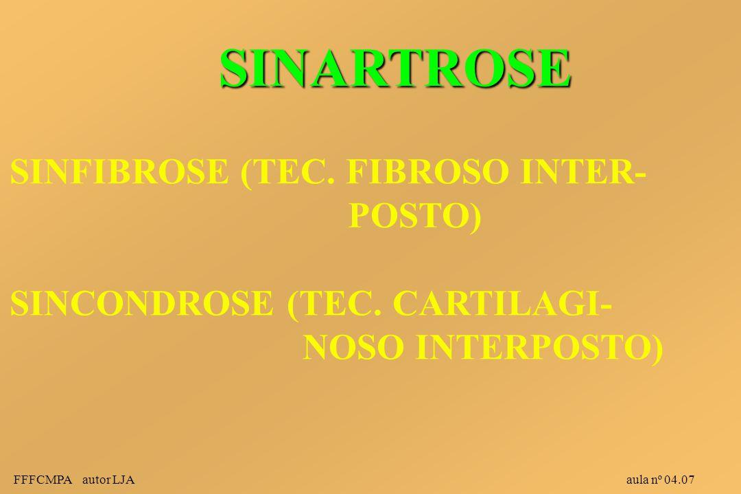 SINARTROSE SINFIBROSE (TEC. FIBROSO INTER- POSTO)