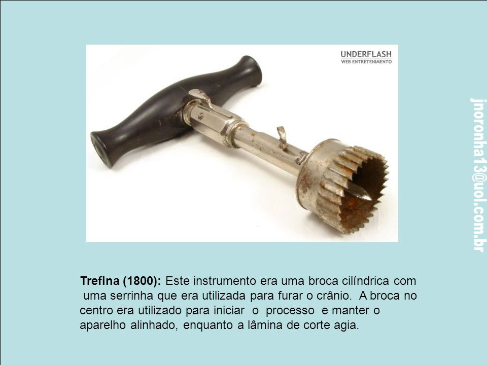 Trefina (1800): Este instrumento era uma broca cilíndrica com