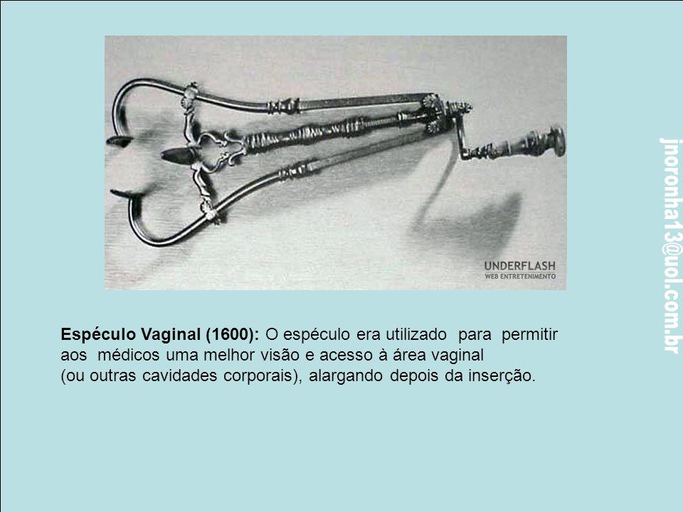 Espéculo Vaginal (1600): O espéculo era utilizado para permitir