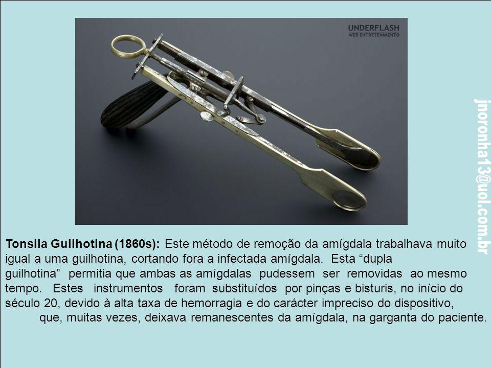 Tonsila Guilhotina (1860s): Este método de remoção da amígdala trabalhava muito