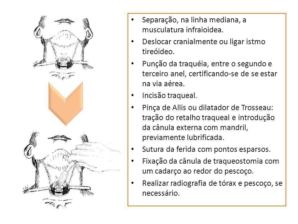 Separação, na linha mediana, a musculatura infraioidea.