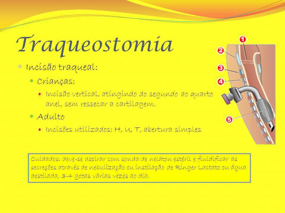 Traqueostomia Incisão traqueal: Crianças: Adulto