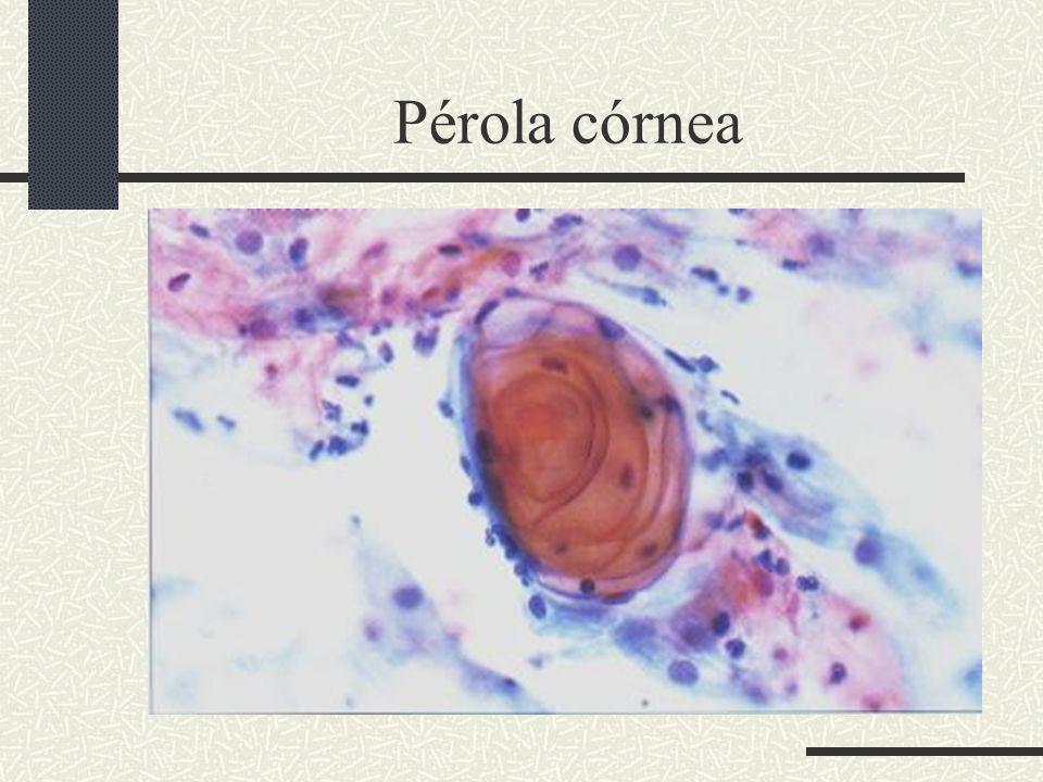 Pérola córnea