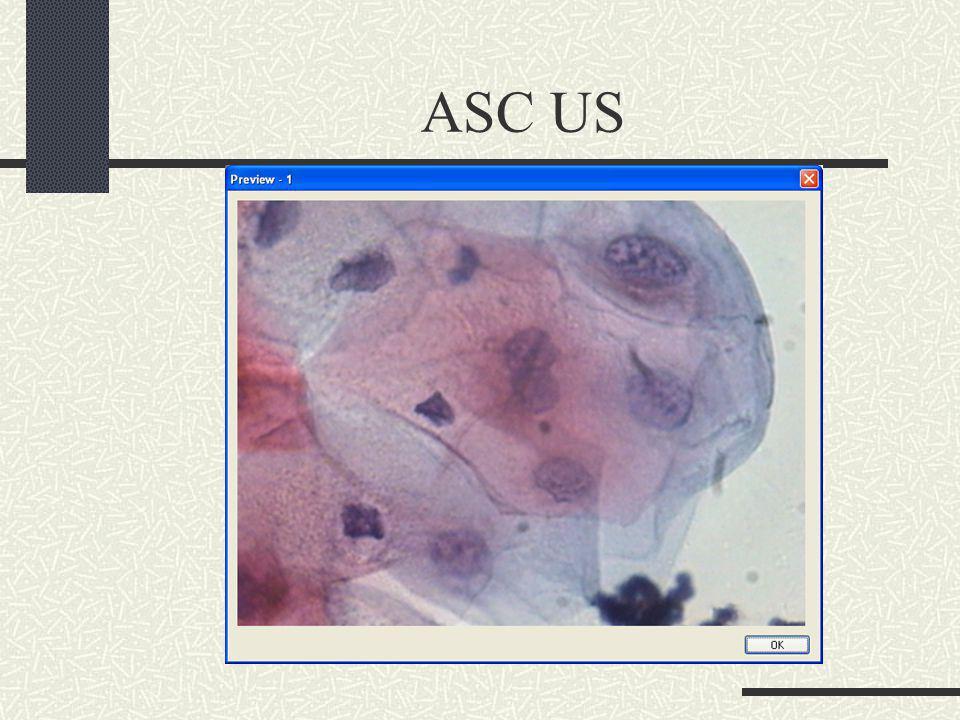 ASC US