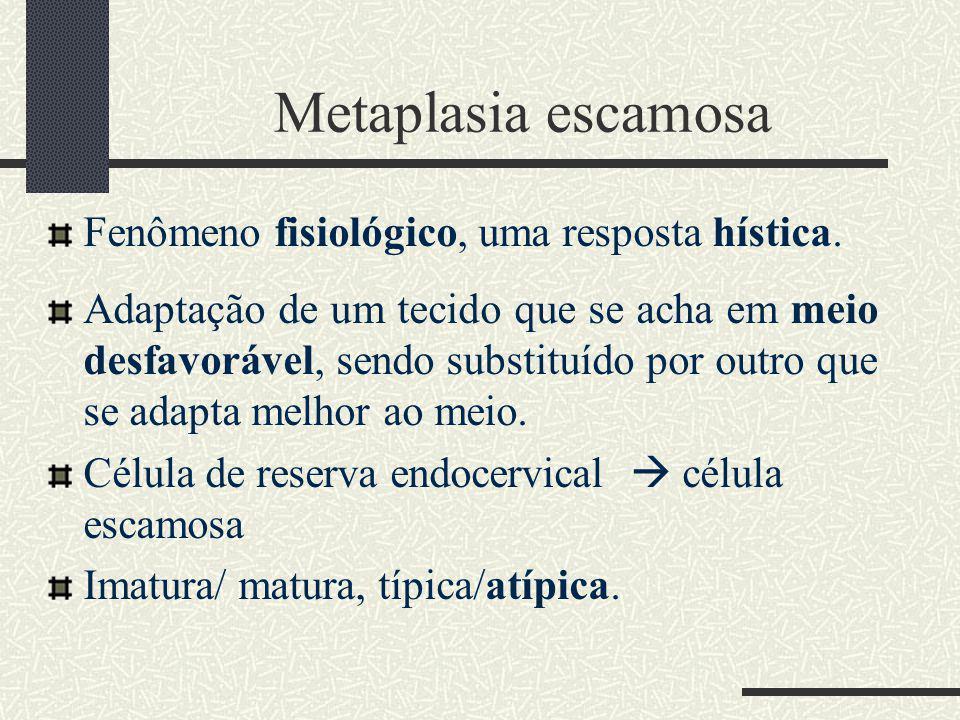 Metaplasia escamosa Fenômeno fisiológico, uma resposta hística.