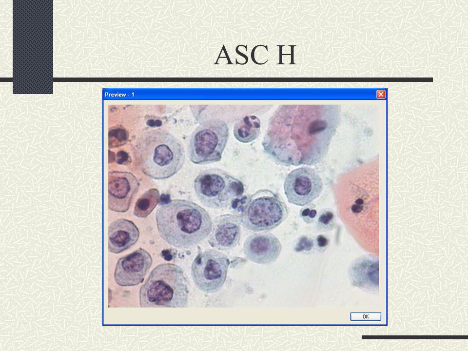 ASC H