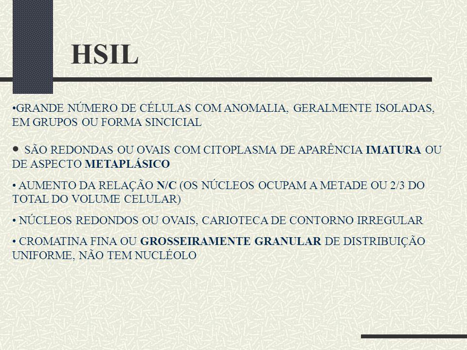 HSIL GRANDE NÚMERO DE CÉLULAS COM ANOMALIA, GERALMENTE ISOLADAS, EM GRUPOS OU FORMA SINCICIAL.