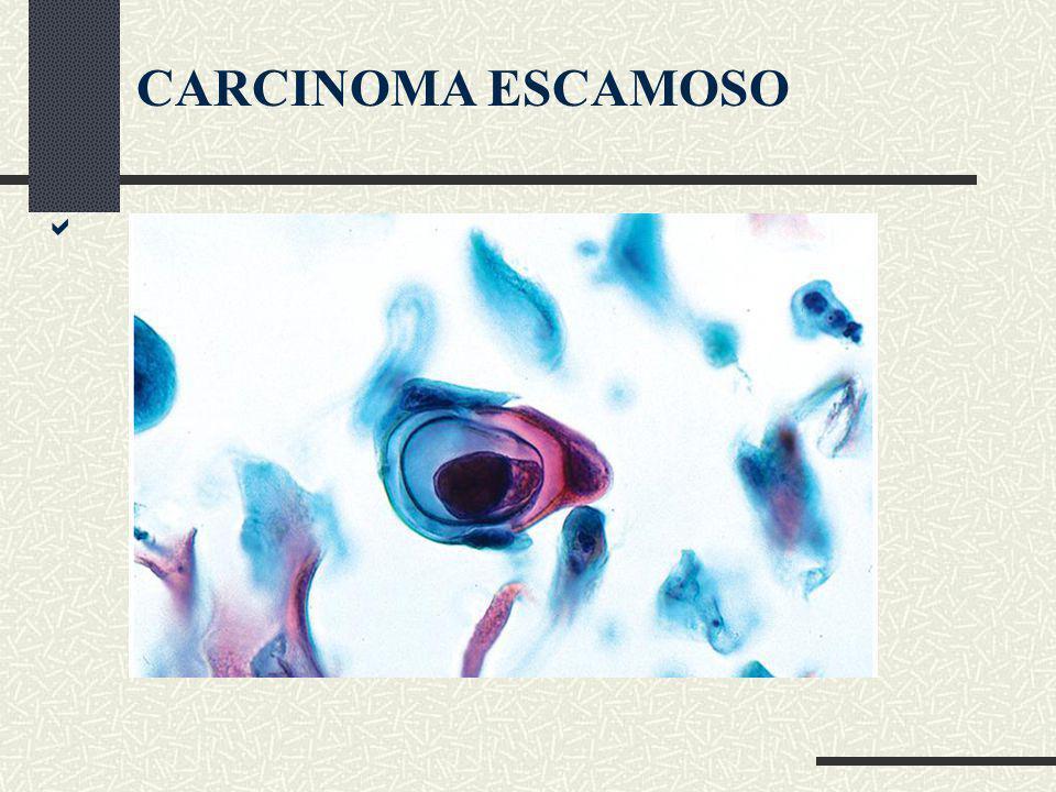 CARCINOMA ESCAMOSO 