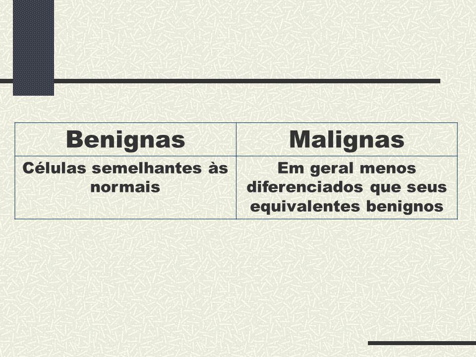 Benignas Malignas Células semelhantes às normais