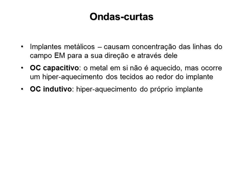 Ondas-curtas Implantes metálicos – causam concentração das linhas do campo EM para a sua direção e através dele.