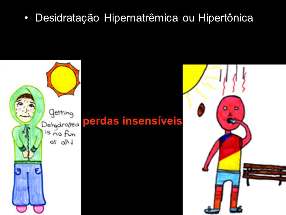 Desidratação Hipernatrêmica ou Hipertônica