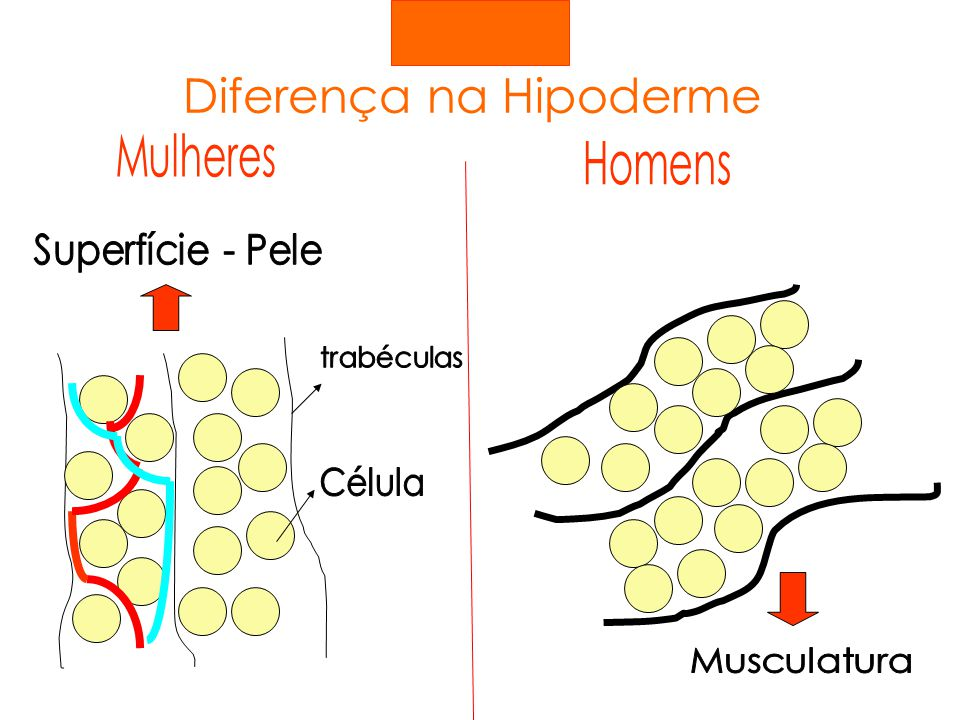 Diferença na Hipoderme