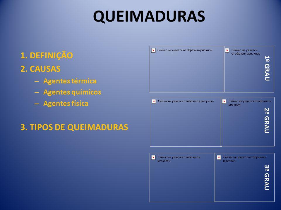 QUEIMADURAS 1. DEFINIÇÃO 2. CAUSAS 3. TIPOS DE QUEIMADURAS