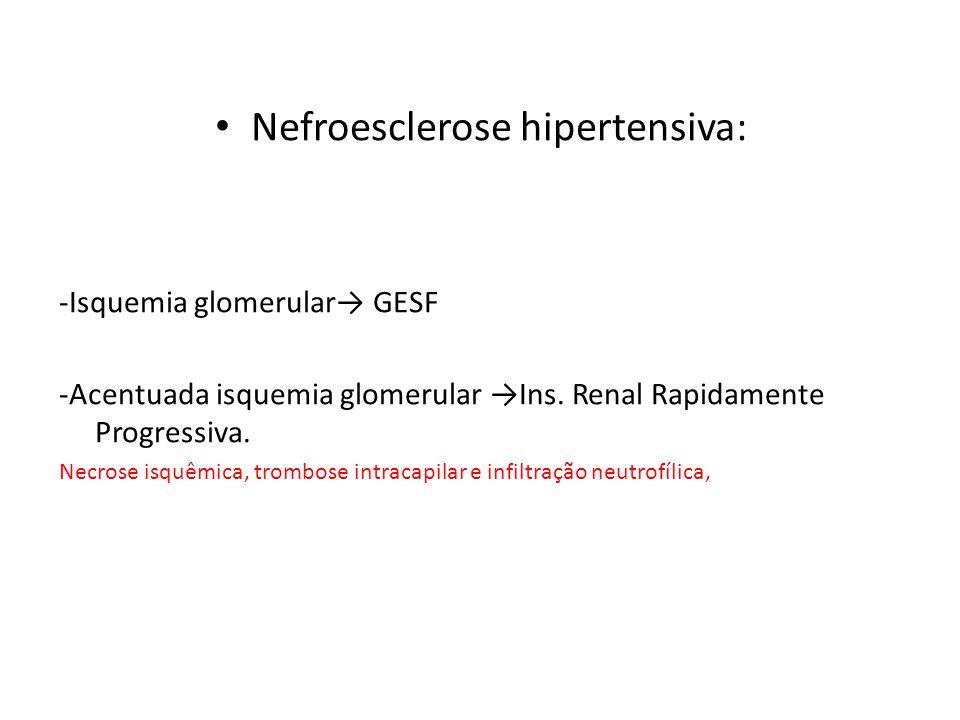 Nefroesclerose hipertensiva: