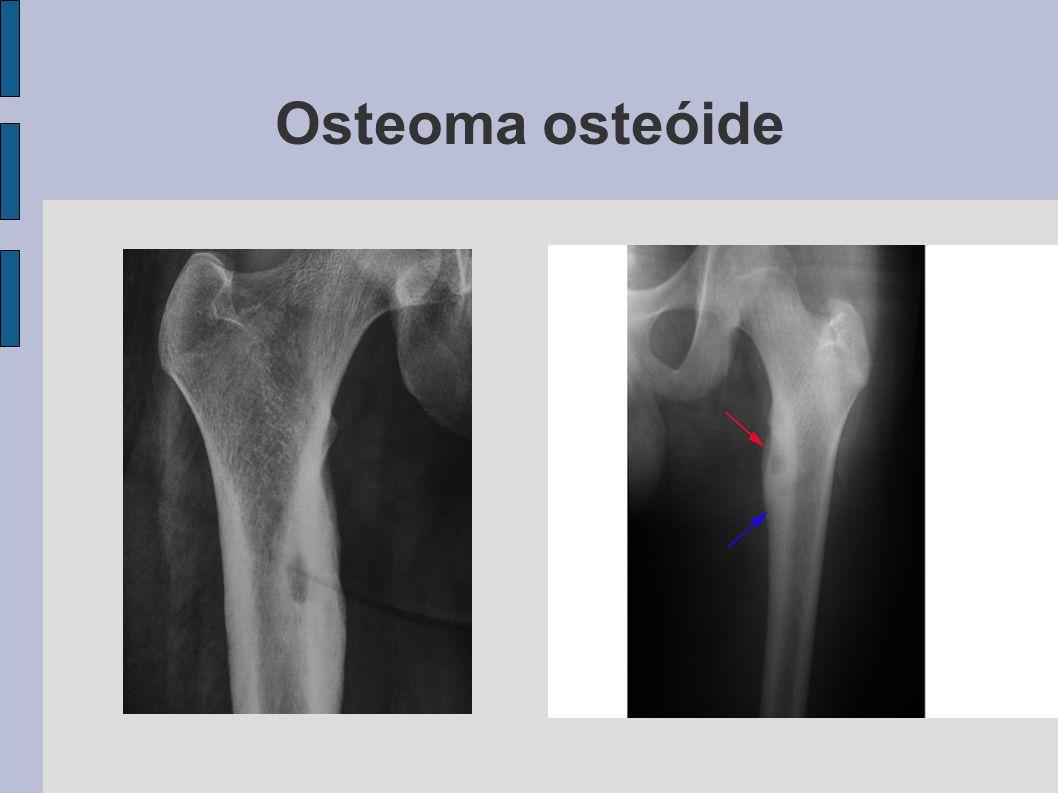 Osteoma osteóide