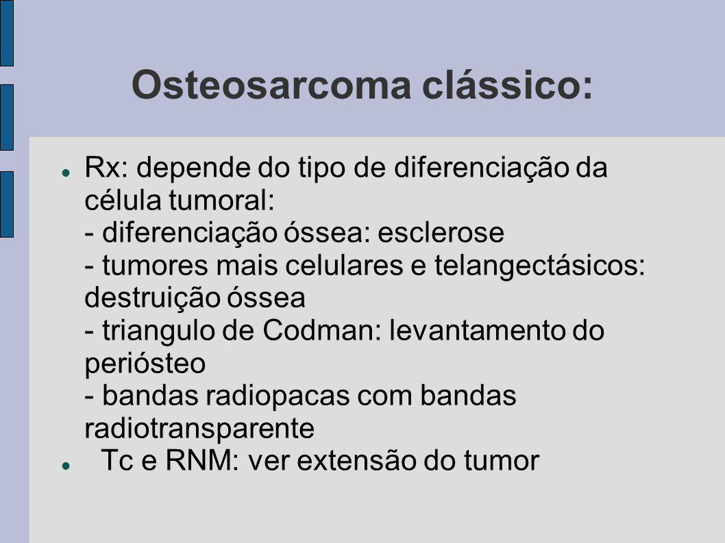 Osteosarcoma clássico: