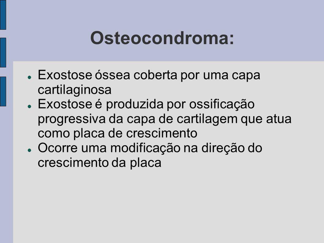 Osteocondroma: Exostose óssea coberta por uma capa cartilaginosa