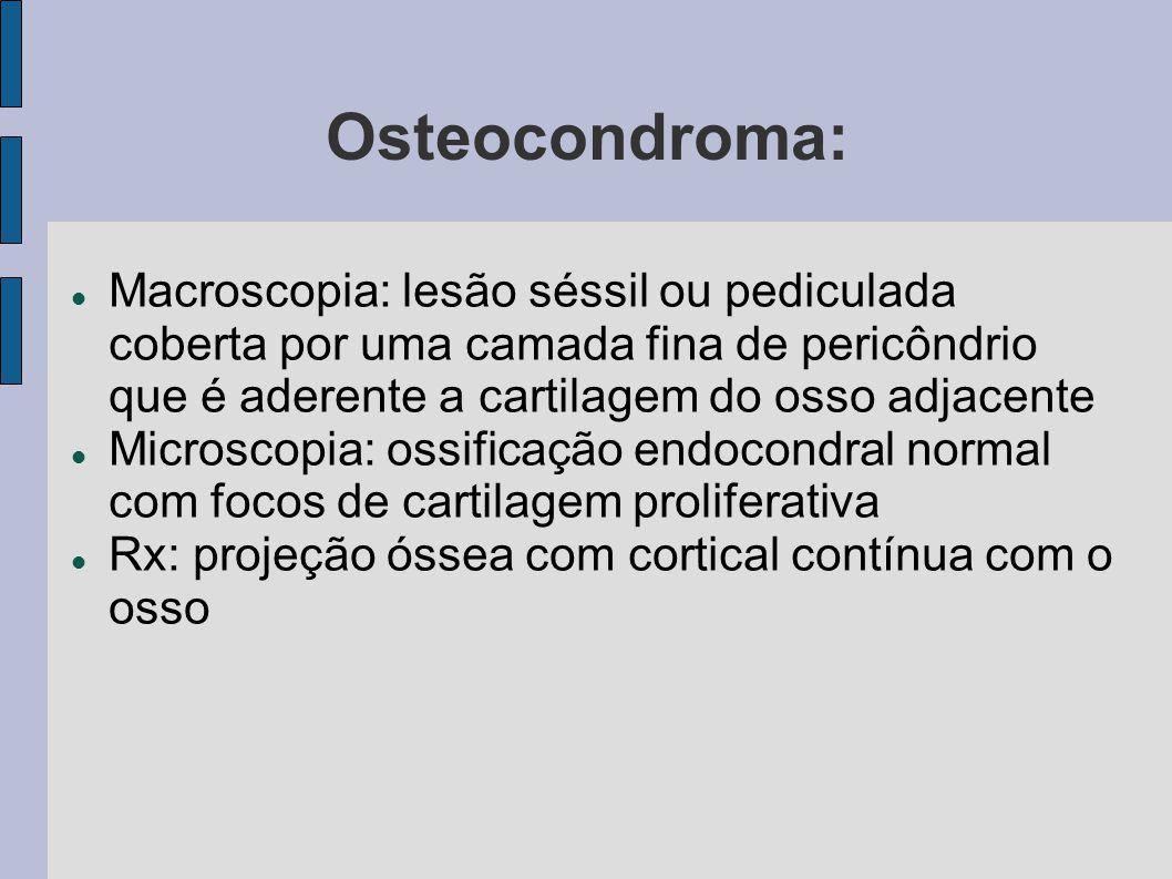 Osteocondroma: Macroscopia: lesão séssil ou pediculada coberta por uma camada fina de pericôndrio que é aderente a cartilagem do osso adjacente.
