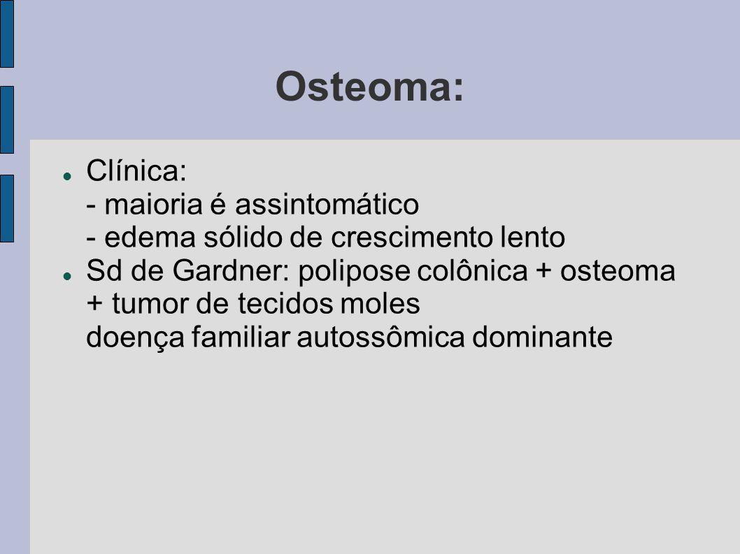 Osteoma: