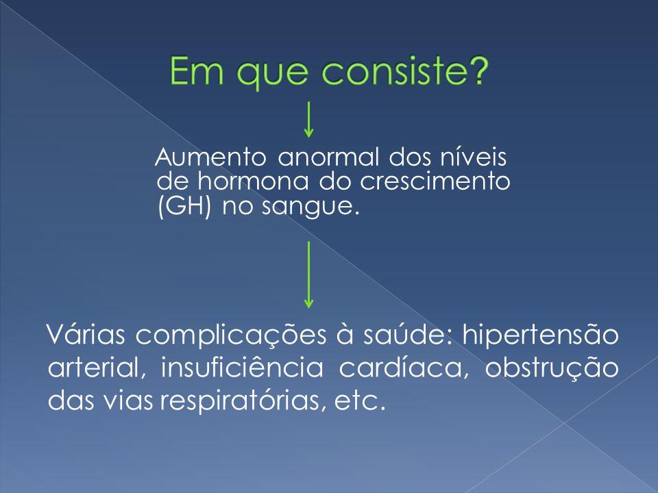 Em que consiste Aumento anormal dos níveis de hormona do crescimento (GH) no sangue.