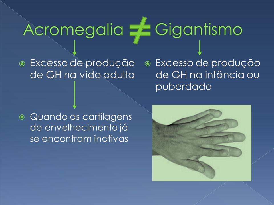 Acromegalia Gigantismo Excesso de produção de GH na vida adulta