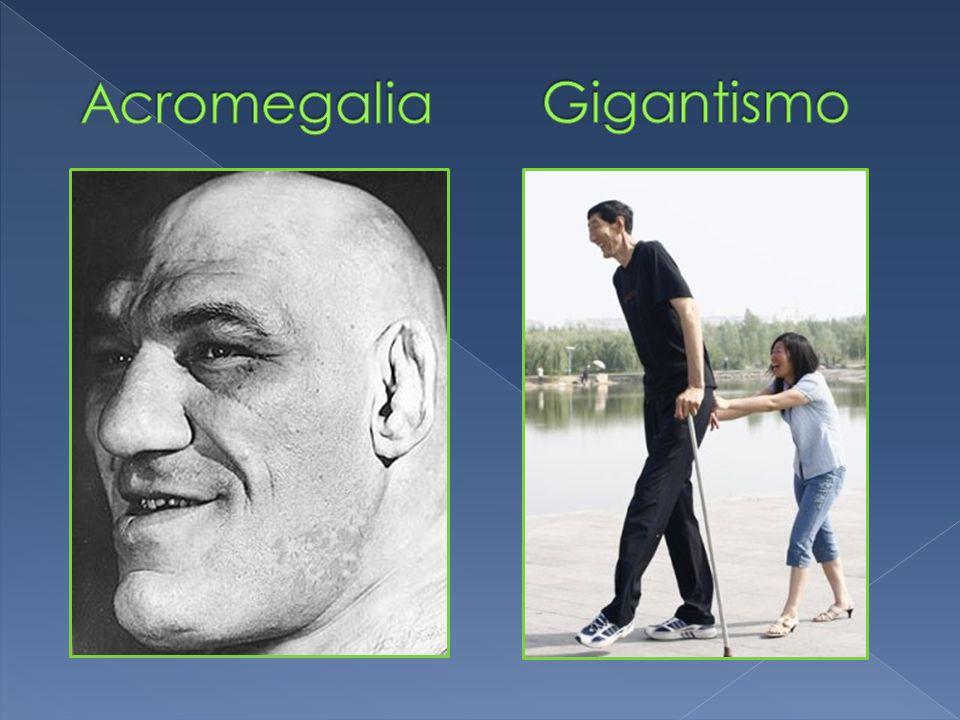 Acromegalia Gigantismo