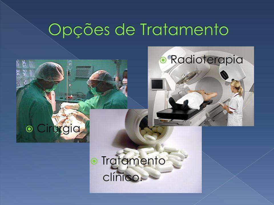 Opções de Tratamento Radioterapia Cirurgia Tratamento clínico.