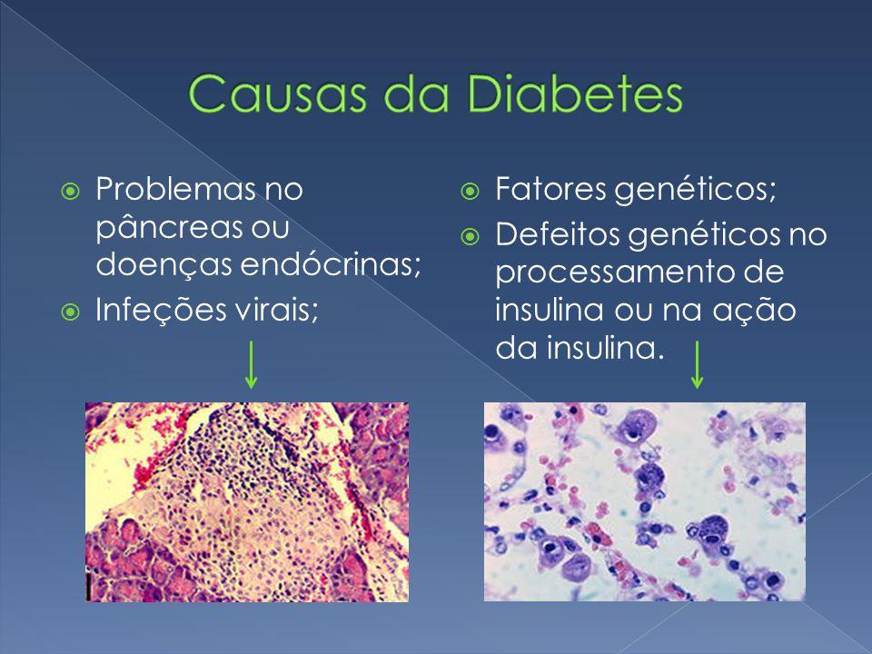 Causas da Diabetes Problemas no pâncreas ou doenças endócrinas;