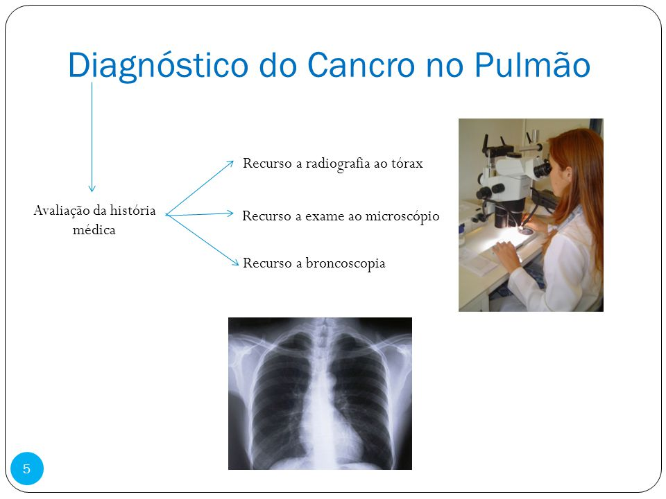 Diagnóstico do Cancro no Pulmão