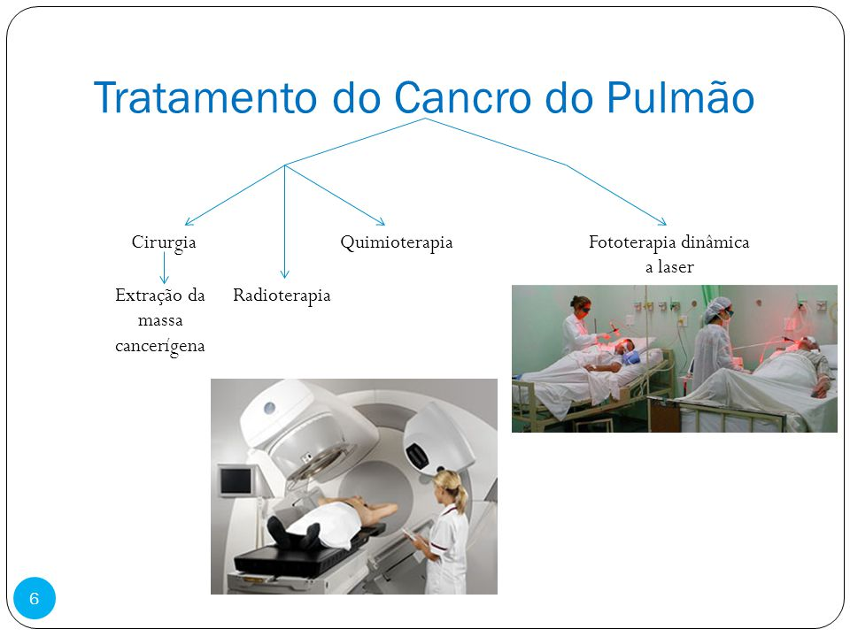 Tratamento do Cancro do Pulmão