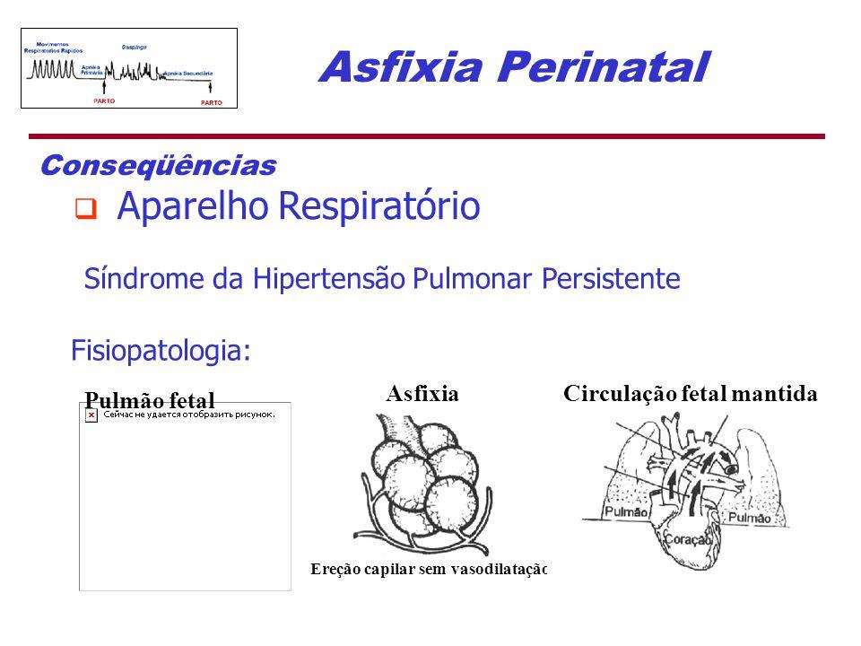 Síndrome da Hipertensão Pulmonar Persistente