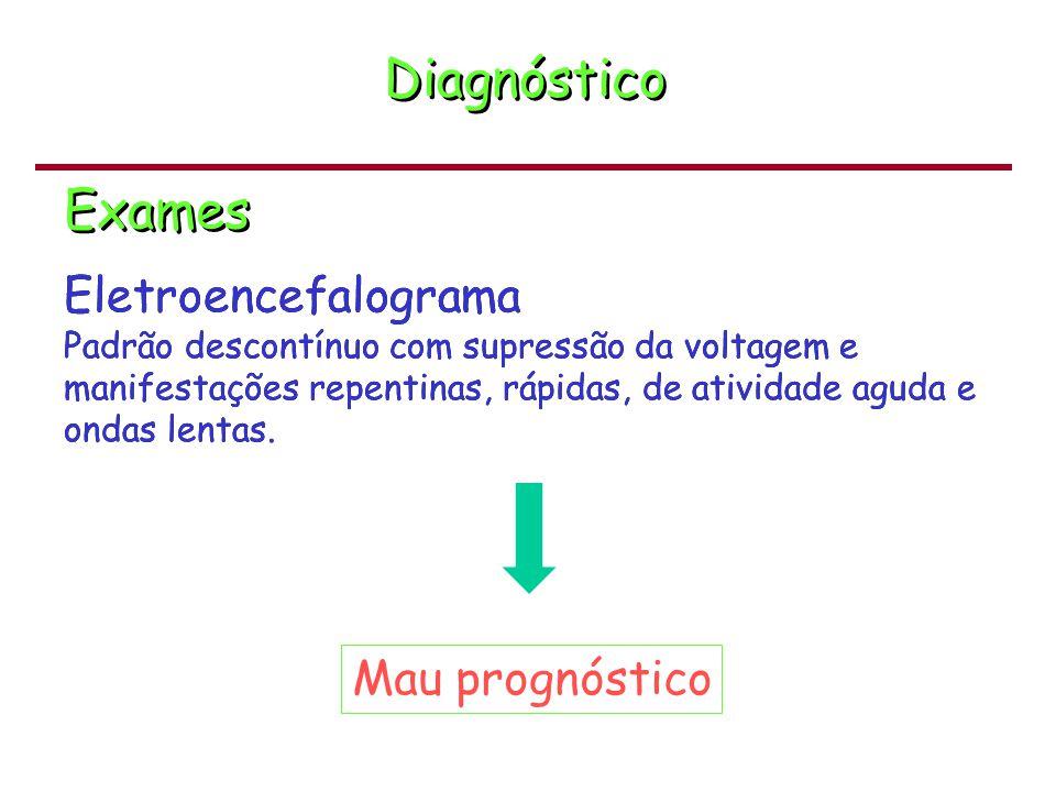 Diagnóstico Exames Eletroencefalograma Mau prognóstico