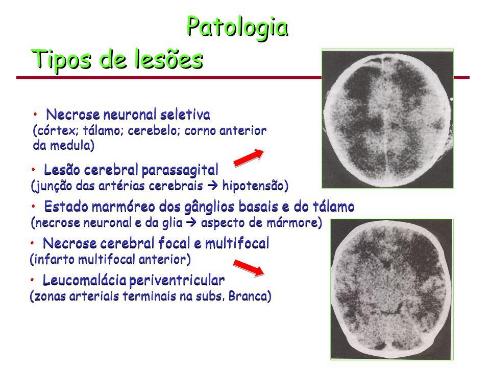 Patologia Tipos de lesões Necrose neuronal seletiva