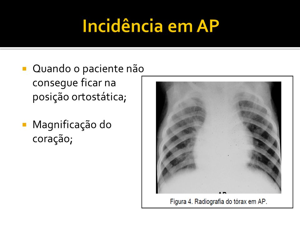 Incidência em AP Quando o paciente não consegue ficar na posição ortostática; Magnificação do coração;