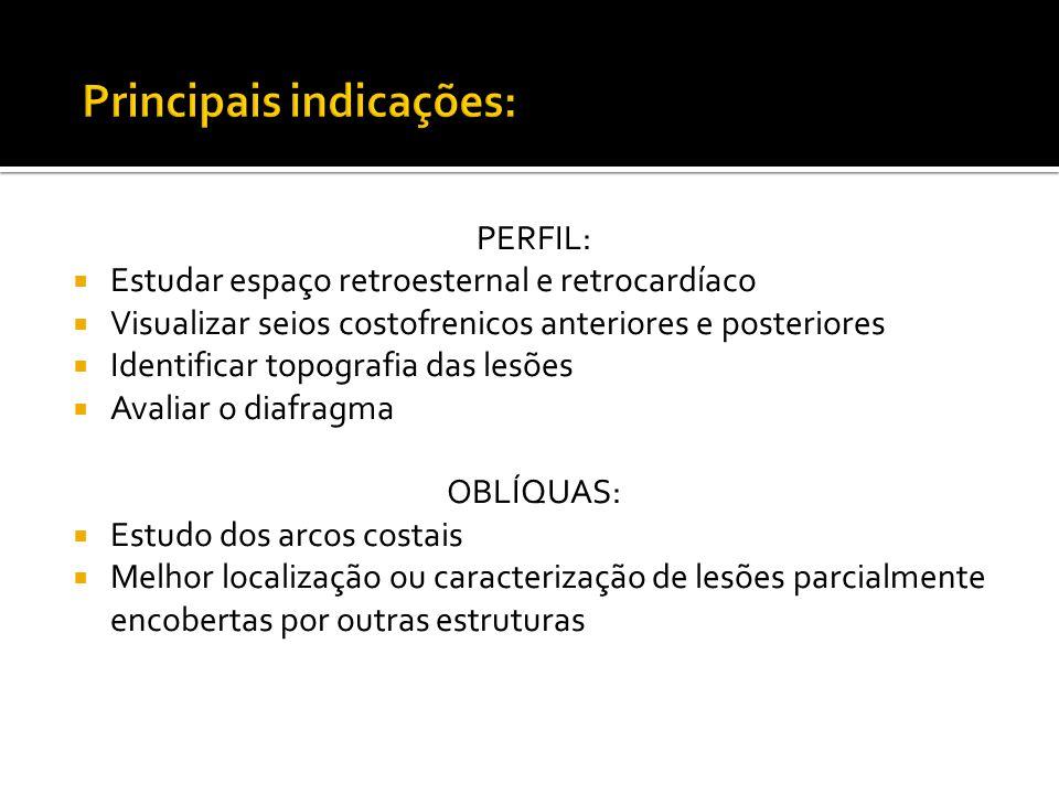 Principais indicações:
