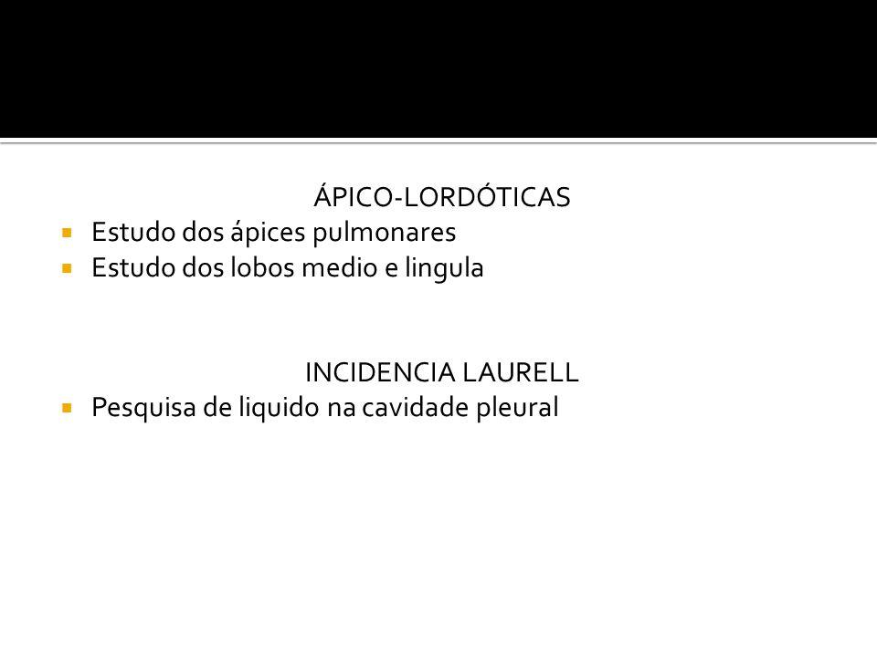 ÁPICO-LORDÓTICAS Estudo dos ápices pulmonares. Estudo dos lobos medio e lingula. INCIDENCIA LAURELL.