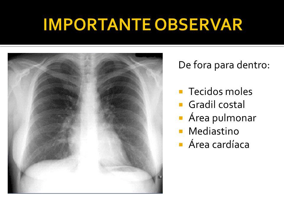 IMPORTANTE OBSERVAR De fora para dentro: Tecidos moles Gradil costal