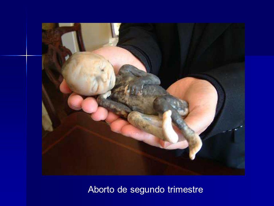 Aborto de segundo trimestre