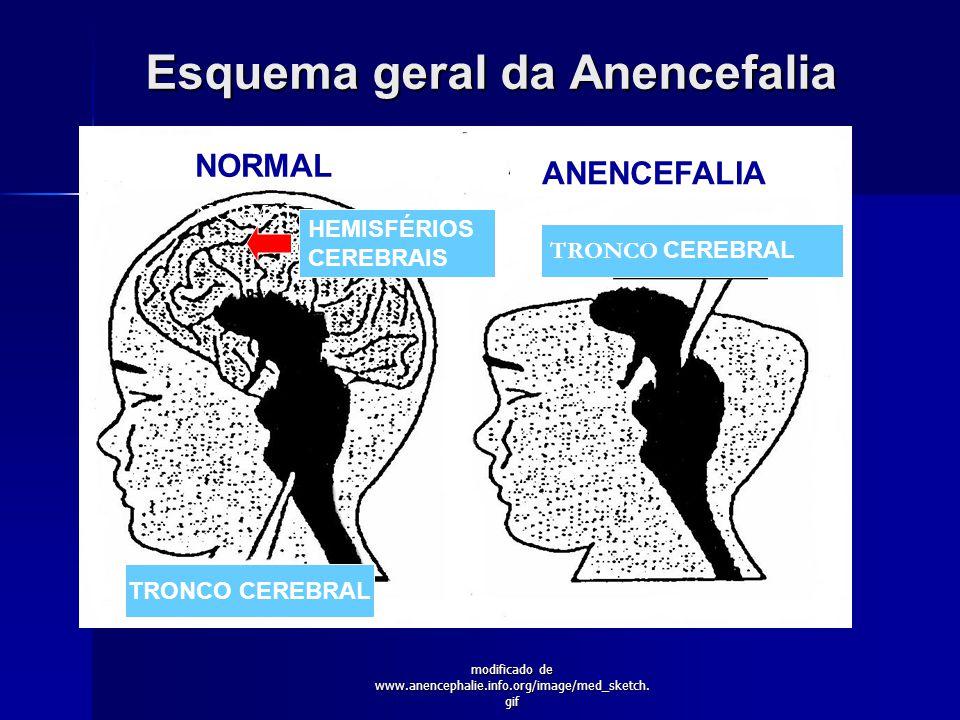 Esquema geral da Anencefalia